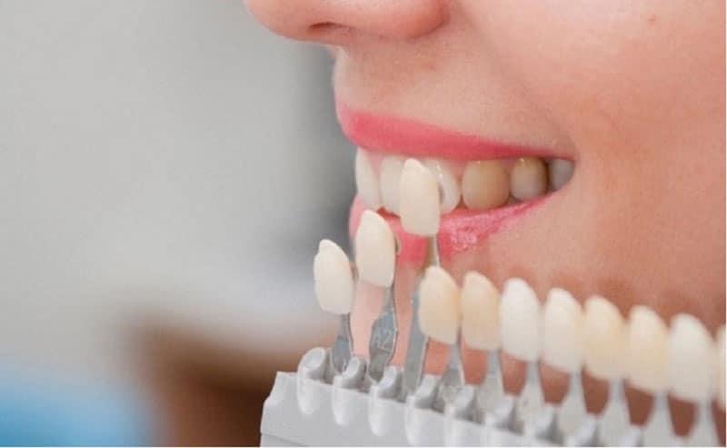 Bọc răng sứ có đẹp vĩnh viễn như quãng cáo không