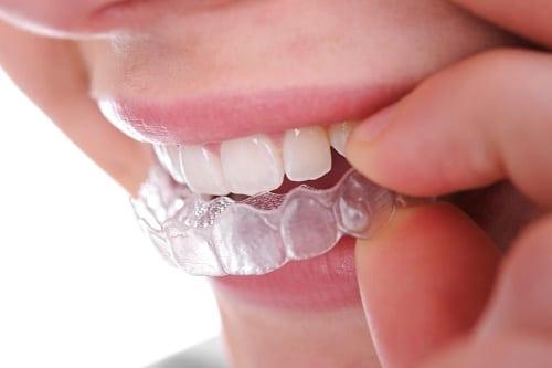 Bọc răng sứ có tốt không nên bọc ở đâu để thực sự an tâm?