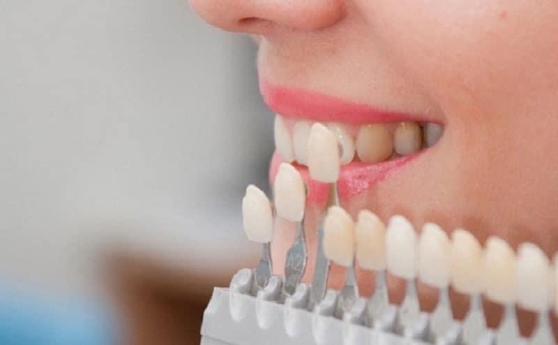 Bọc răng sứ giá bao nhiêu-3