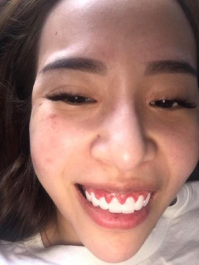 """Bỏ ra 300 triệu bọc răng sứ cô gái trẻ rơi vào cảnh """"tiền mất tật mang"""""""
