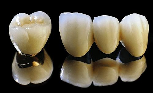 Bọc răng sứ titan có tốt không, có ảnh hưởng gì đến sức khỏe?