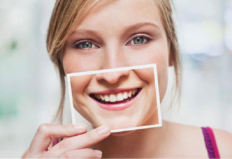 Hiểu lầm khi bọc răng sứ thẩm mỹ