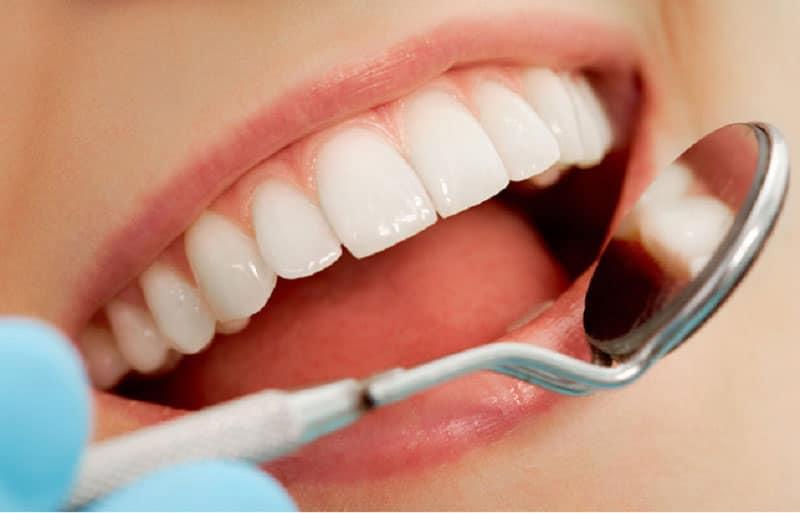 Những hiểu lầm khi bọc răng sứ thẩm mỹ