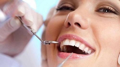 Những sự thật về răng sứ không kim loại không phải ai cũng biết