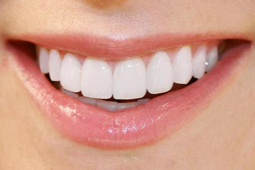 Những điều cần biết khi muốn bọc răng sứ 2 răng cửa