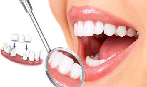 Hãy khoan bọc răng sứ khi chưa biết bọc răng sứ có tác hại gì?