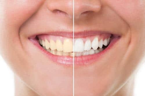 Bọc răng sứ Veneer cho răng bị ố vàng ai nhìn cũng thích