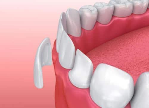 Dán răng sứ không mài răng: Sự lựa chọn tối ưu cho mọi người