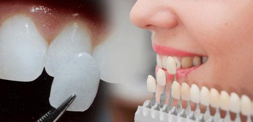 Đắp răng sứ và bọc răng sứ có giống nhau không?