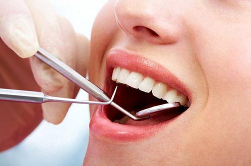 Mài răng sứ sai cách và những hiểm họa khôn lường nên tránh