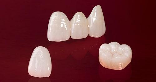 Bí quyết chọn lựa địa chỉ nha khoa răng sứ chất lượngBí quyết chọn lựa địa chỉ nha khoa răng sứ chất lượng