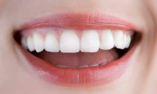 Những sai lầm cần tránh khi chọn nha khoa răng sứ để làm đẹp