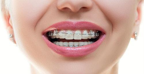 Nên niềng răng hay bọc răng sứ? Cái nào đẹp hơn?