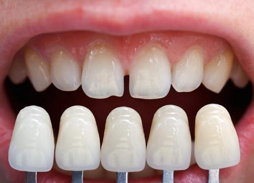 Những ai nên áp dụng phục hình răng sứ?