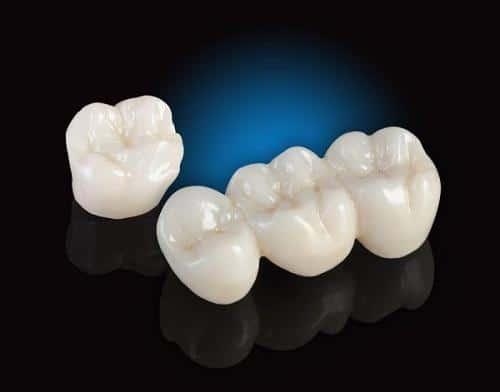 Răng sứ không kim loại loại nào là tốt nhất?