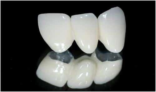 Răng sứ Mỹ là loại răng sứ nào hiện nay, có những ưu điểm nào?