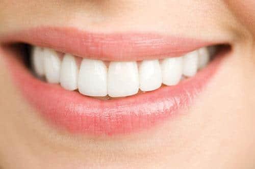 Răng sứ Zirconia là gì, giá răng sứ zirconia hiện nay bao nhiêu?
