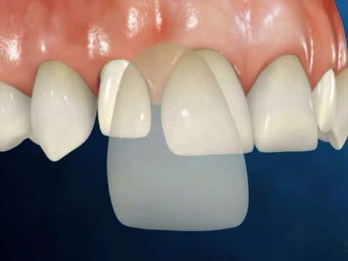 Có mấy phương pháp thẩm mỹ răng sứ, nên chọn phương pháp nào?