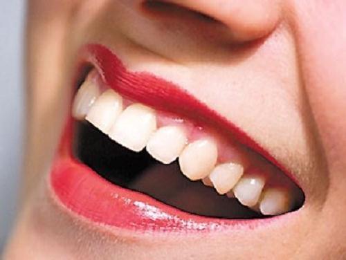 Răng bị mẻ nên bọc hay trám răng sứ?