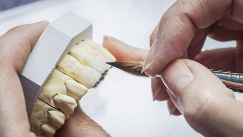 Quy trình trồng răng sứ không kim loại, hết khoản bao nhiêu tiền?