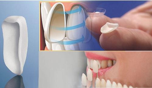 Bọc răng sứ Veneer có bị bong ra không?